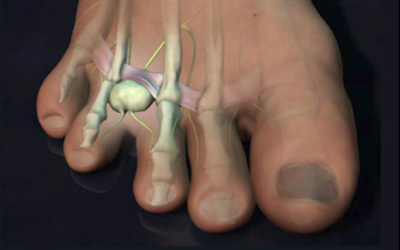 Morton's Neuroma by Jacqueline Horne